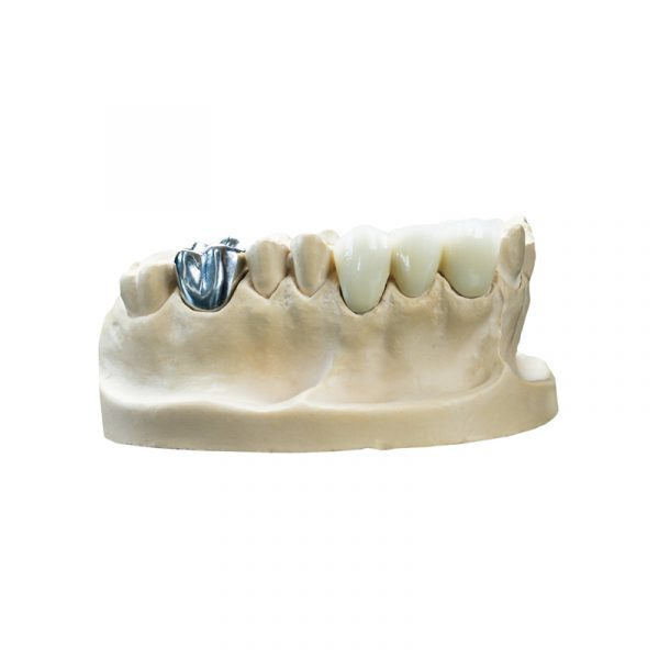 DruckWege Type D Dental Castable